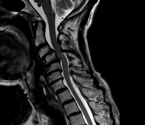 Cervical Deformity and Myelopathy in an Elderly Female