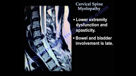 Cervical Spine Myelopathy - Everything You Need To Know